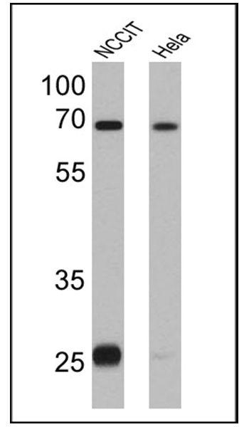 LIN28A Antibody (MA1-016-HRP) in Western Blot