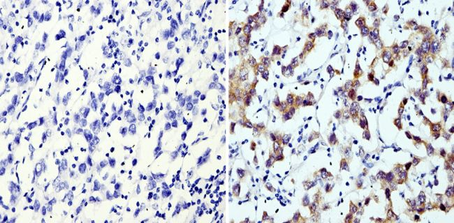 LIN28A Antibody (MA1-016) in Immunohistochemistry (Paraffin)