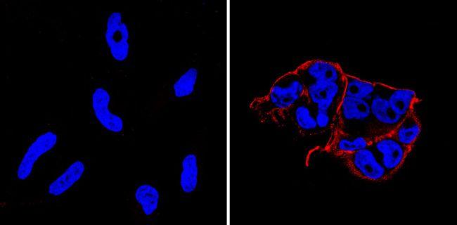 TRA-1-60 Antibody (MA1-023-PE) in Immunofluorescence