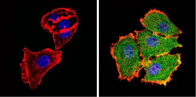 AKT2 Antibody (MA1-034) in Immunofluorescence