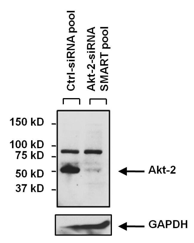 AKT2 Antibody (MA1-034) in Western Blot