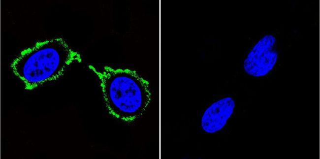 PSD95 Monoclonal Antibody (6G6-1C9)