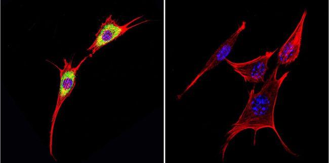 Cytohesin 1 Antibody (MA1-060) in Immunofluorescence
