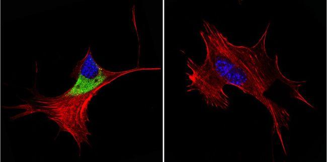 Cytohesin 1/2 Antibody (MA1-062) in Immunofluorescence