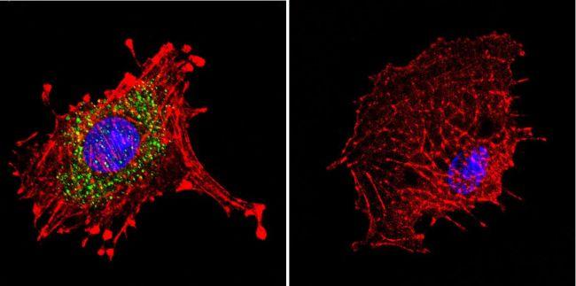 Dynein Antibody (MA1-070) in Immunofluorescence