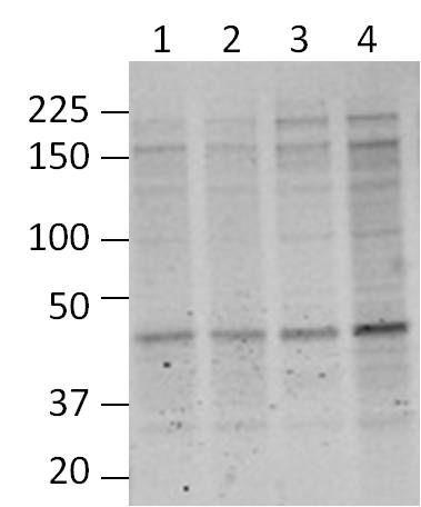 O-linked N-acetylglucosamine (O-GlcNAc) Antibody (MA1-072) in Western Blot