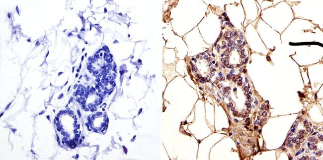 LAP1 Antibody (MA1-074) in Immunohistochemistry