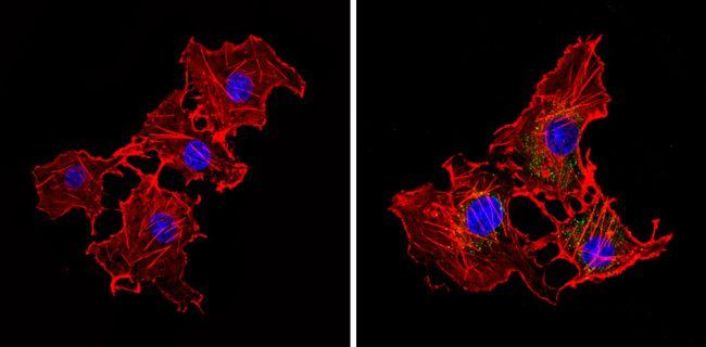 eIF2b gamma Antibody (MA1-078) in Immunofluorescence