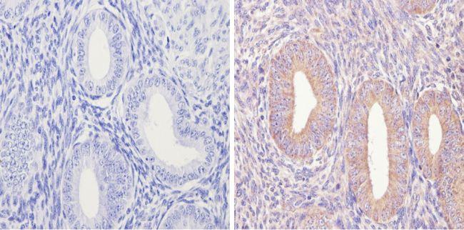 eIF2b gamma Antibody (MA1-078) in Immunohistochemistry (Paraffin)