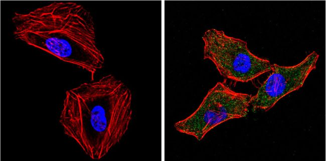 eIF2a Antibody (MA1-079) in Immunofluorescence
