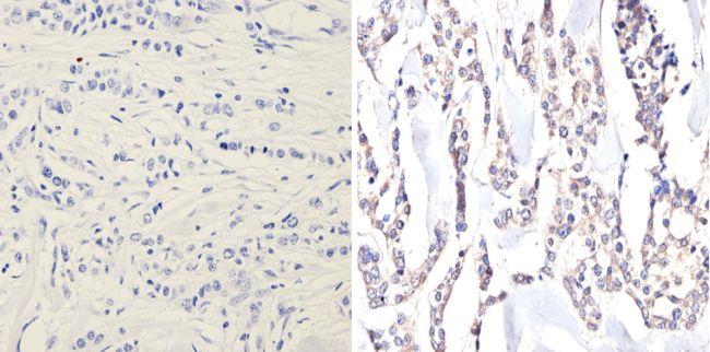 eIF2a Antibody (MA1-079) in Immunohistochemistry (Paraffin)