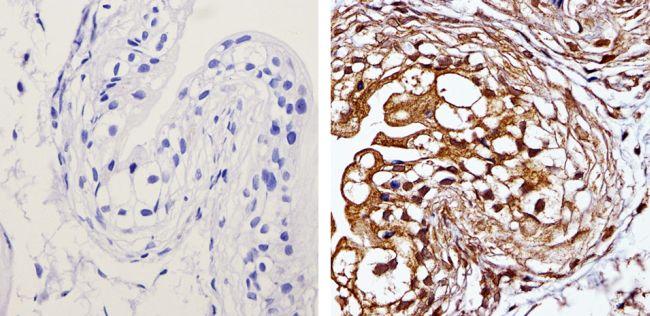 MEK1 Antibody (MA1-095) in Immunohistochemistry (Paraffin)
