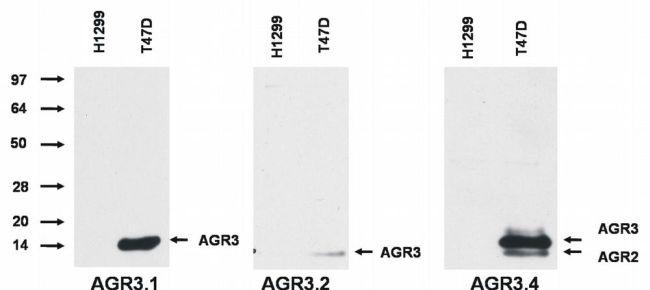 AGR3 Antibody (MA1-10048) in Western Blot