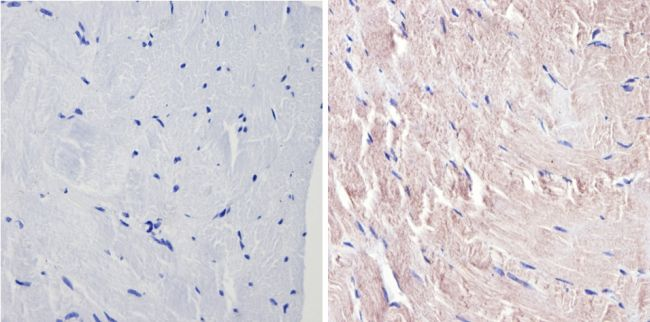 p38 MAPK gamma Antibody (MA1-100) in Immunohistochemistry (Paraffin)