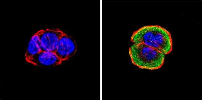 ERK3 Antibody (MA1-101) in Immunofluorescence