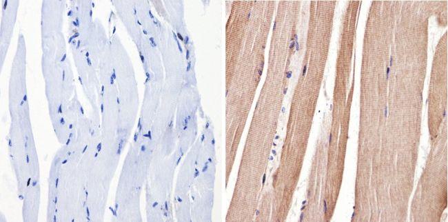 ERK3 Antibody (MA1-101) in Immunohistochemistry (Paraffin)