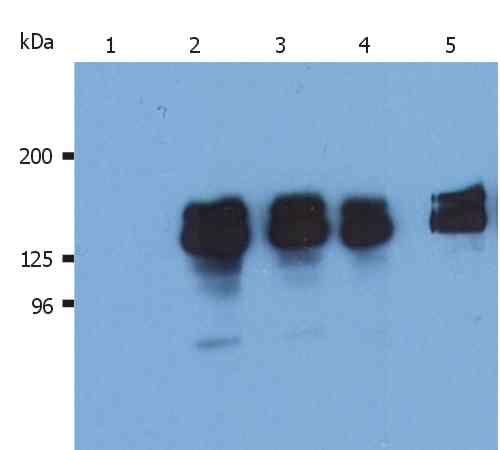 SHIP1 Antibody (MA1-10450) in Western Blot