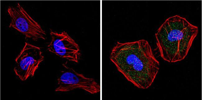 SOD1 Antibody (MA1-105) in Immunofluorescence