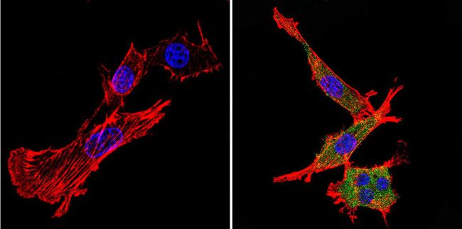 Nestin Antibody (MA1-110) in Immunofluorescence