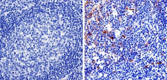 Nestin Antibody (MA1-110) in Immunohistochemistry