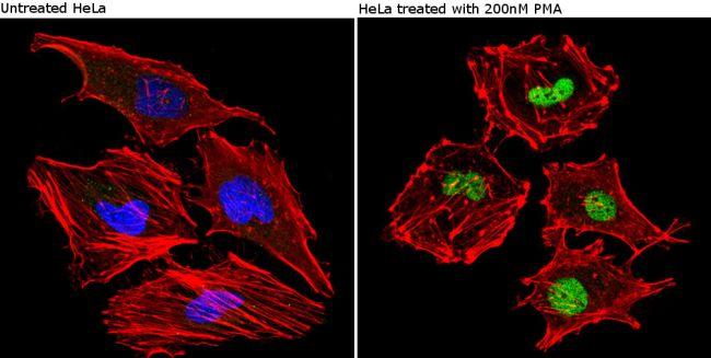 Phospho-CREB/ATF1 (Ser133, Ser63) Antibody (MA1-114) in Immunofluorescence