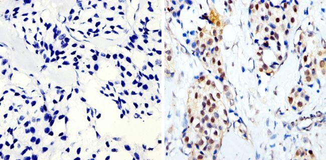 Phospho-CREB/ATF1 (Ser133, Ser63) Antibody (MA1-114) in Immunohistochemistry (Paraffin)