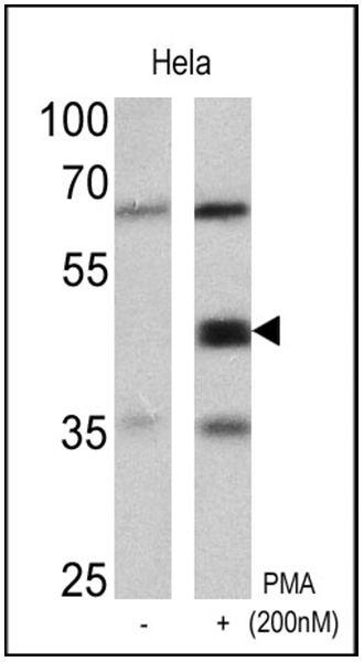 Phospho-CREB/ATF1 (Ser133, Ser63) Antibody (MA1-114) in Western Blot