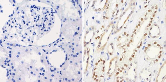 PAX8 Antibody (MA1-117) in Immunohistochemistry (Paraffin)