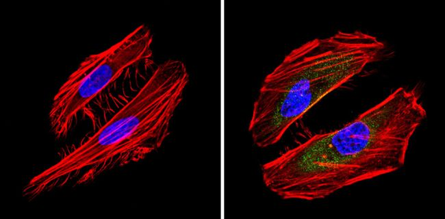 BID Antibody (MA1-13043) in Immunofluorescence