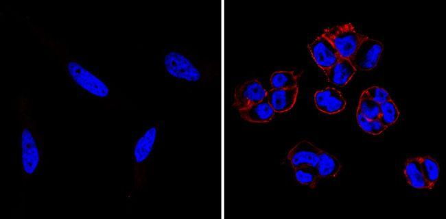 SSEA5 Antibody (MA1-144-D550) in Immunofluorescence