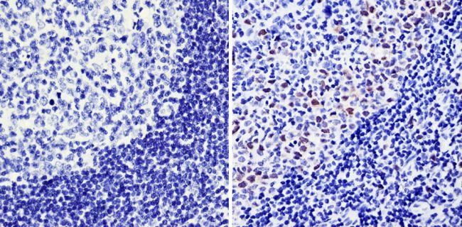 Cyclin A2 Antibody (MA1-154) in Immunohistochemistry (Paraffin)