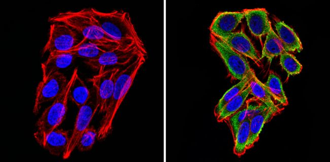 Cyclin B2 Antibody (MA1-156) in Immunofluorescence