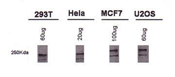 BRCA1 Antibody (MA1-16619) in Western Blot