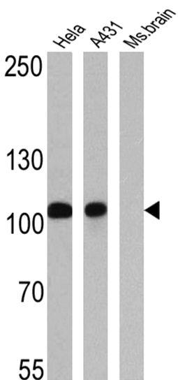 alpha Catenin Antibody (MA1-2000) in Western Blot