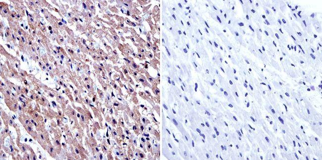 GRK2 Antibody (MA1-2013) in Immunohistochemistry