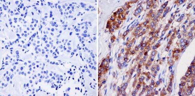 NMDA Receptor 2B Antibody (MA1-2014)