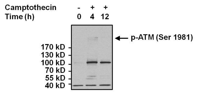 Phospho-ATM (Ser1981) Antibody (MA1-2020) in Western Blot