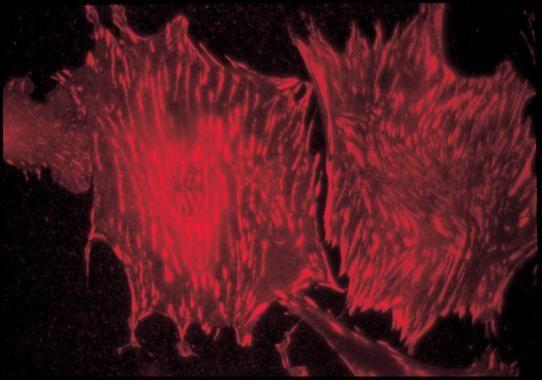 Talin Antibody (MA1-20231)