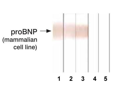 pro-Brain Natriuretic Peptide Antibody (MA1-20584) in Western Blot