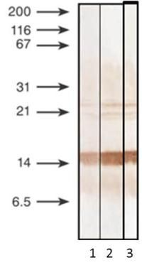 Procalcitonin Antibody (MA1-20888) in Western Blot