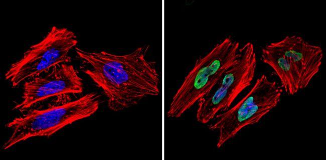 Ku70/Ku80 Antibody (MA1-21818) in Immunofluorescence