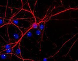 Fibrillarin Antibody (MA1-22000) in Immunofluorescence