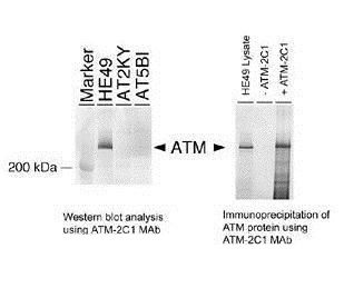 ATM Antibody (MA1-23152) in Immunoprecipitation