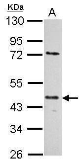 E2F1 Antibody (MA1-23208) in Western Blot