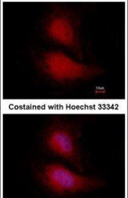 FOXO1 Antibody (MA1-23230) in Immunofluorescence