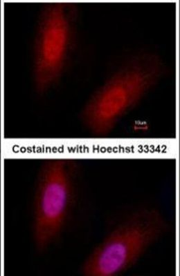 ID3 Antibody (MA1-23242)