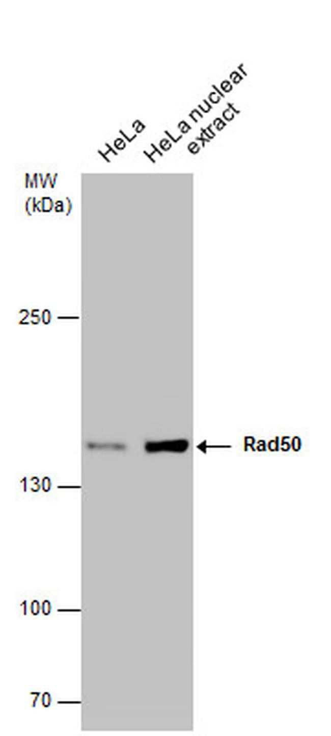 RAD50 Antibody (MA1-23269) in Western Blot