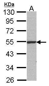 RbAp48 Antibody (MA1-23273) in Western Blot