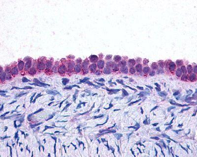 C/EBP beta Antibody (MA1-23319) in Immunohistochemistry