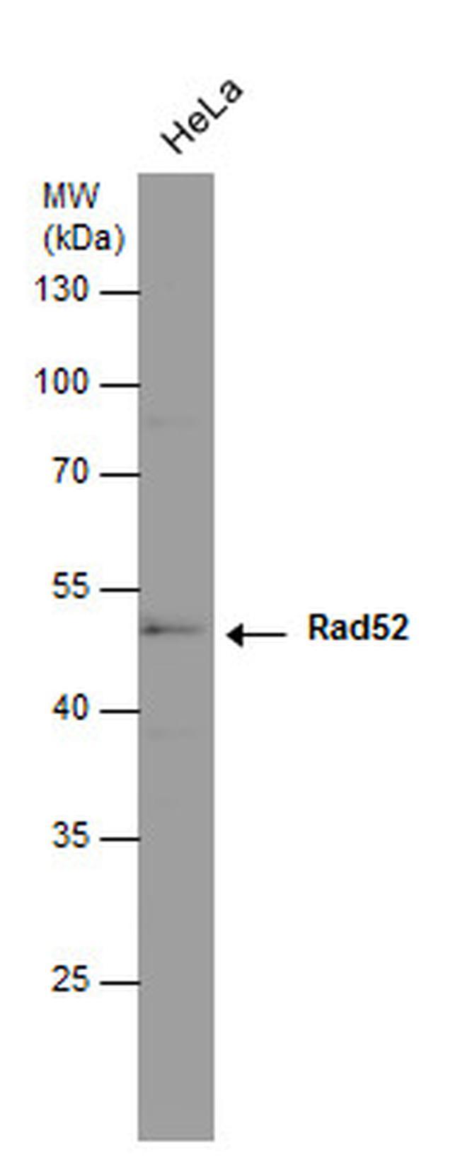 RAD52 Antibody (MA1-23334) in Western Blot